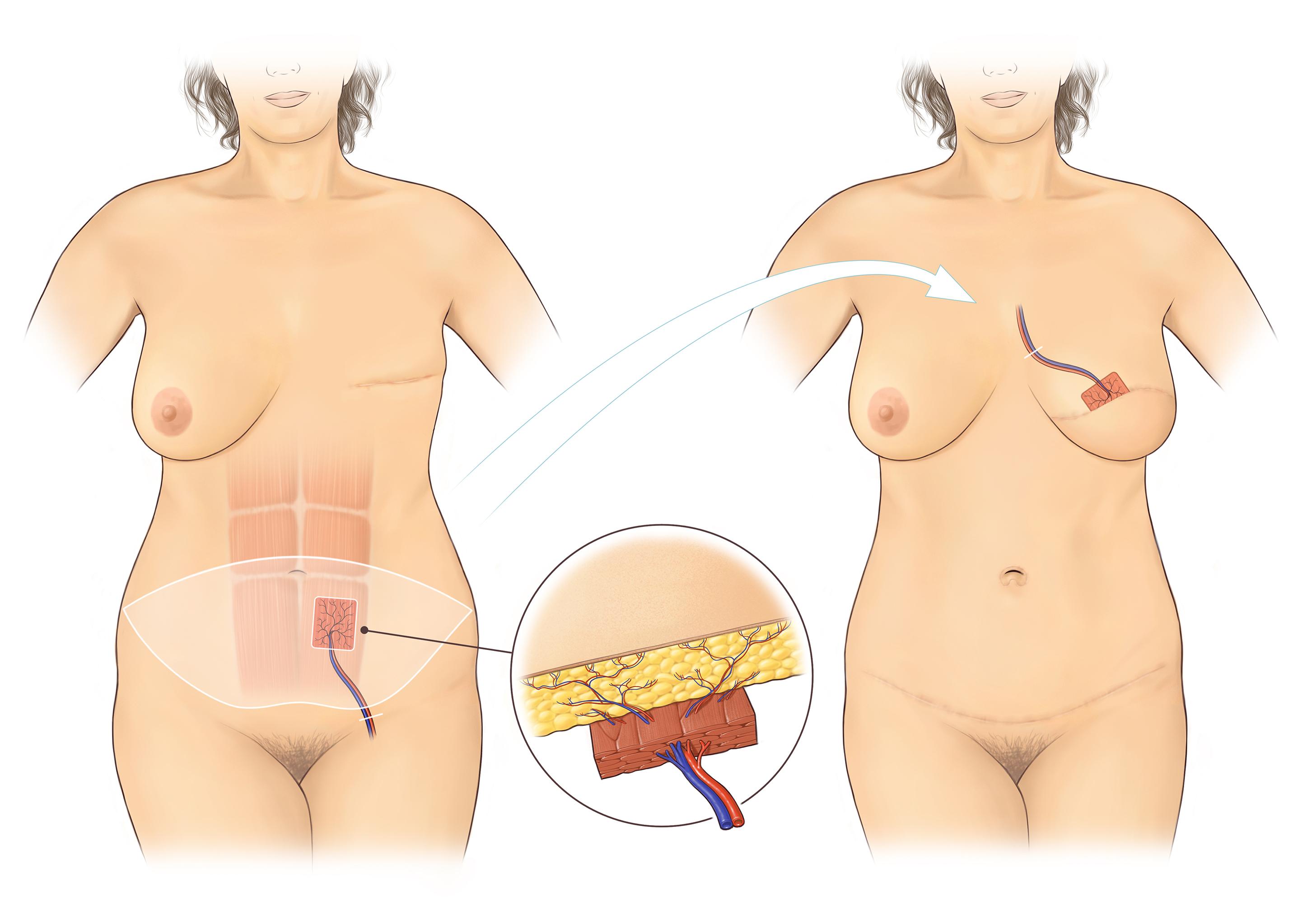 3.Abdominal flap(A5)