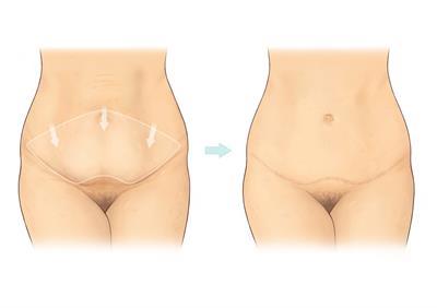 Abdominoplasty | BAPRAS