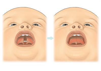 an analysis of the cleft lip syndrome in the united states Associated anomalies in cleft lip and palate: analysis of 811 consecutive patients the united states of associated anomalies in cleft lip and/or.