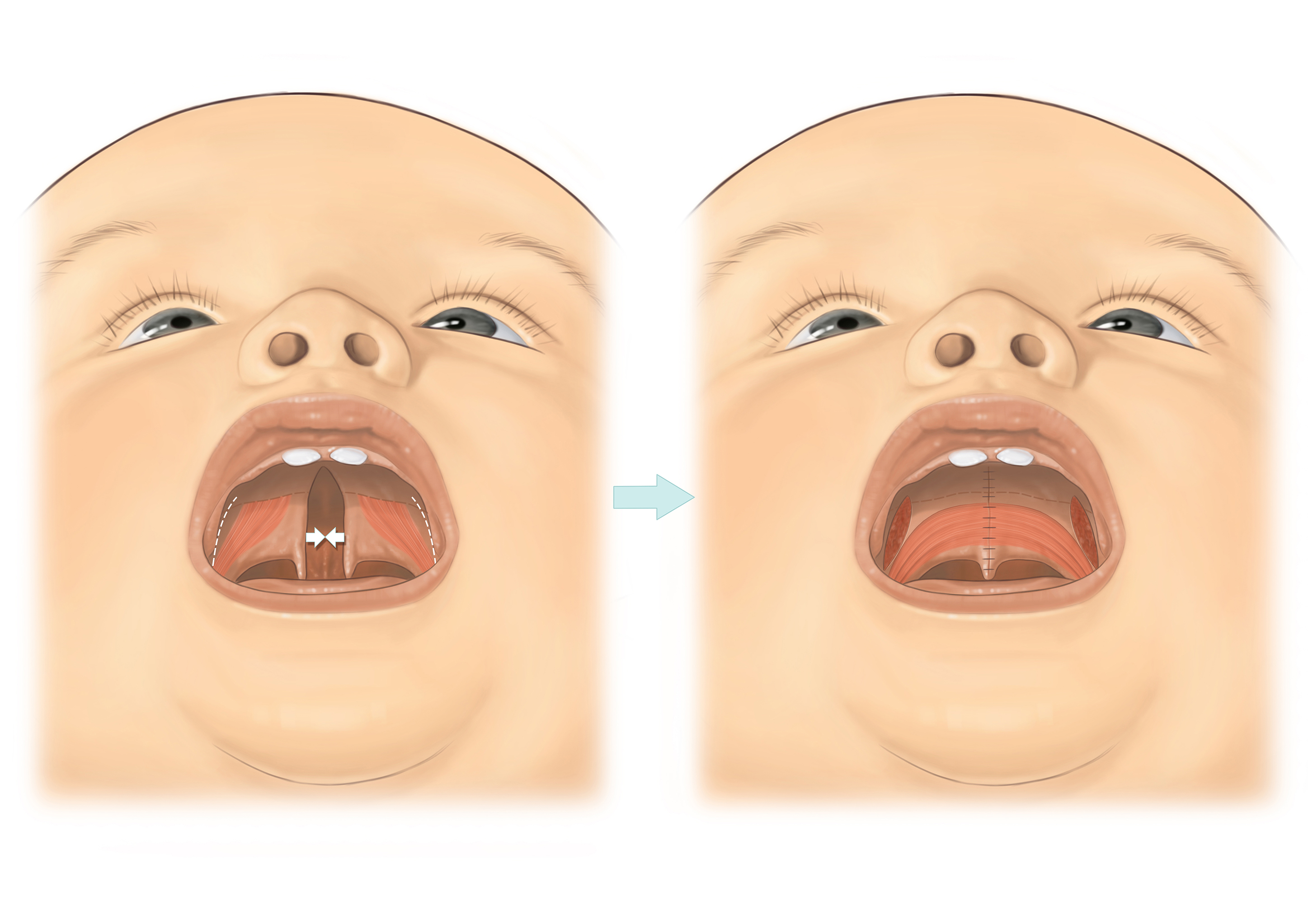 Cleft palate-A5