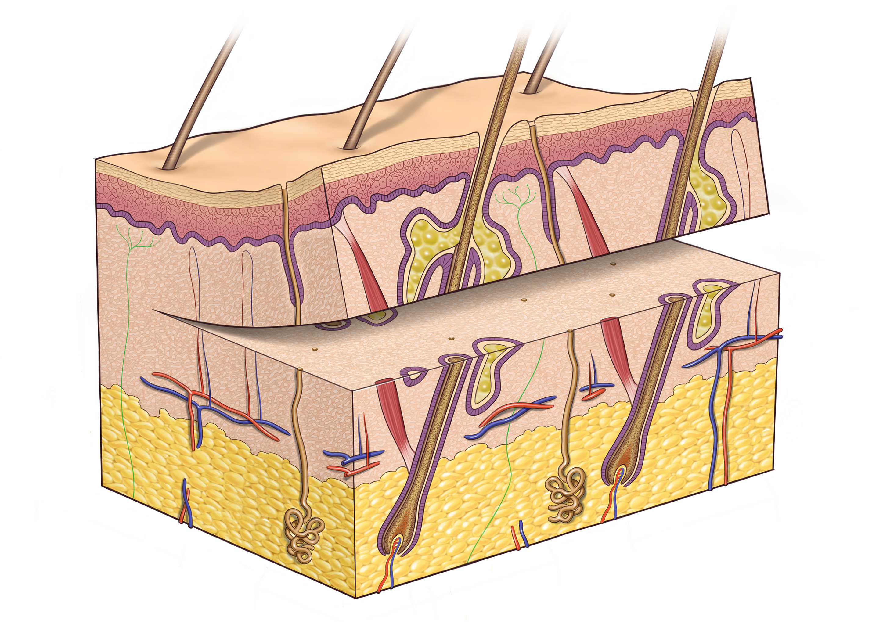 Partial skin graft