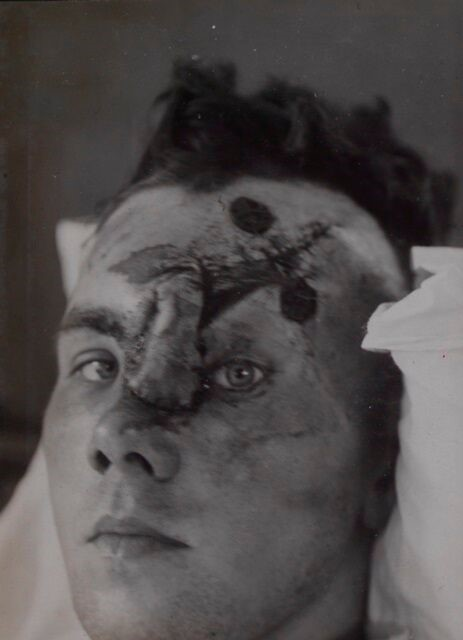 Plastic Surgery: The Surgical Specialty of World War One