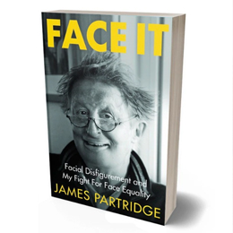 FACE IT: Facial Disfigurement and my Fight for Face Equality